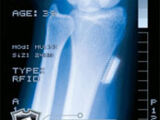 Card 60: X-Ray