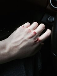 Bloody-knuckles