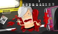 Bleed pre-op hd