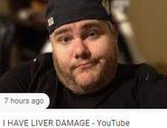 I HAVE LIVER DAMAGE thumbnail (2)