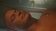 Ciało Damiena Darhka przygotowane do wskrzeszenia