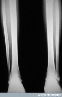 Radiografia criança com escorbuto.jpg