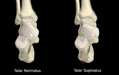 Talar Supinatus vs No Talar Supinatus.jpg