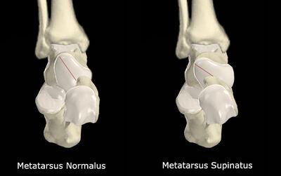 Metatarsus Supinatus vs No Met Supinatus.jpg