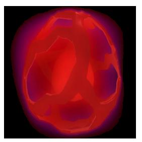 Nightmare Egg