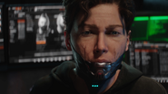 Jessica Mason synthetic jaw after her injuries BO4
