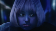 Violet's Swelling Face 2