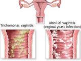 Vaginitis bacteriana enfermedad de transmisión sexual