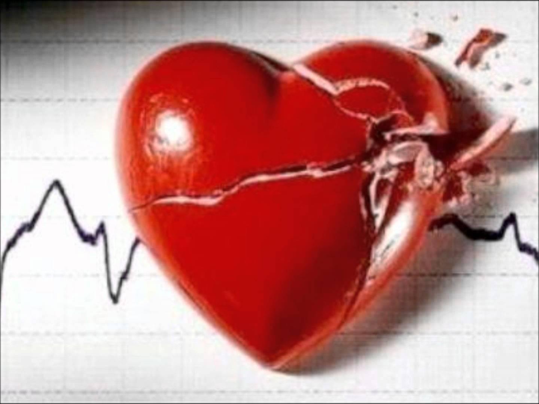 Corazón muerto