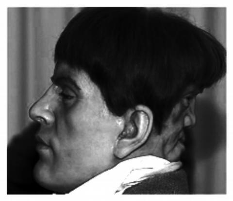 Edward Mordake - człowiek o dwóch twarzach