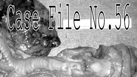 """""""Case File No.56"""" by Fear Of-0"""