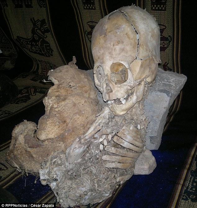 Riquelme's Alien Skeleton
