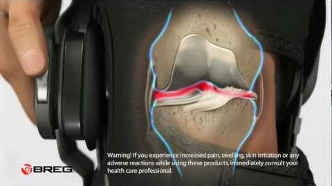 Learn_About_Knee_Osteoarthritis_(OA)