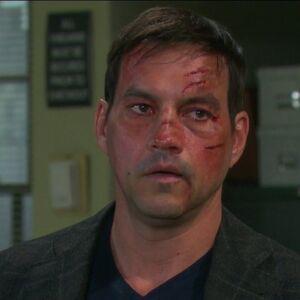 Stefan's damaged face.jpg