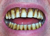 Zombie Teeth.jpg