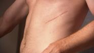 3 Dexter's surgical scar S1E9