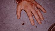 Mendell's ring 510