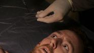 Alex Tilden blood slide 510