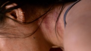 Norma's bruises 804