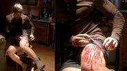 Gunshot wound on Dexter's leg