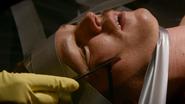 Boyd's cheek sliced 503
