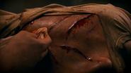 Lumen's wounds 504