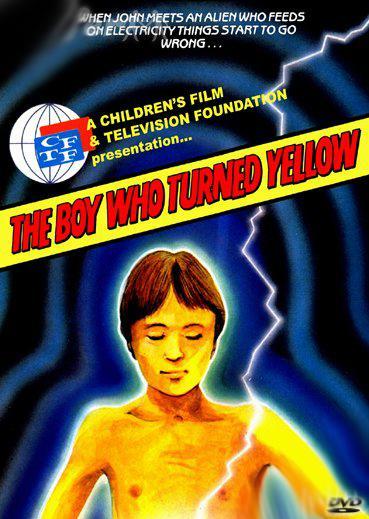 El niño que se volvió amarillo