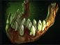 Pudge Wars N'aix's Jaw icon.png