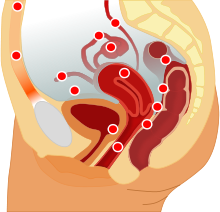 Endometriosis.png