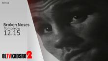 Eltvkadsre2brokennosespromo2016