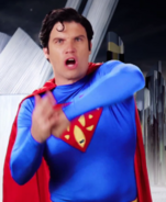 Superman Hole In Chest Error