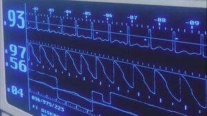 Rebirth heart monitor.jpg