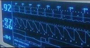 EOE heart monitor.jpg
