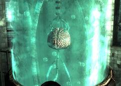 Calvert brain.jpg