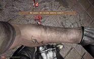FC2 Лечение 11 Пулевое ранение