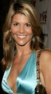 Lori-Loughlin-Plastic-Surgery