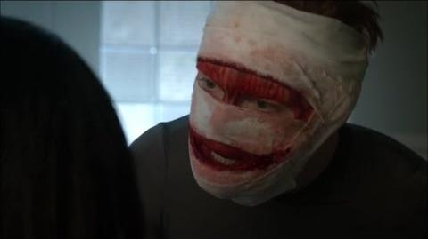 """Gotham 3x13-Jerome comes back to life """"Where's my face?"""""""