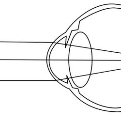 Эмметропия