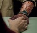 103-Mellifer arm