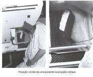 Mamografia6.jpeg