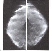 Mamografia3.jpeg