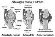 ArtriteIdiopá2