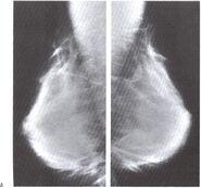 Mamografia2.jpeg