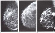 Mamografia4.jpeg