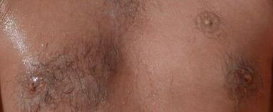 Scaramanga 3rd Nipple