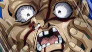 Shigechi mangled face