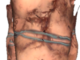 Human Skin Suit