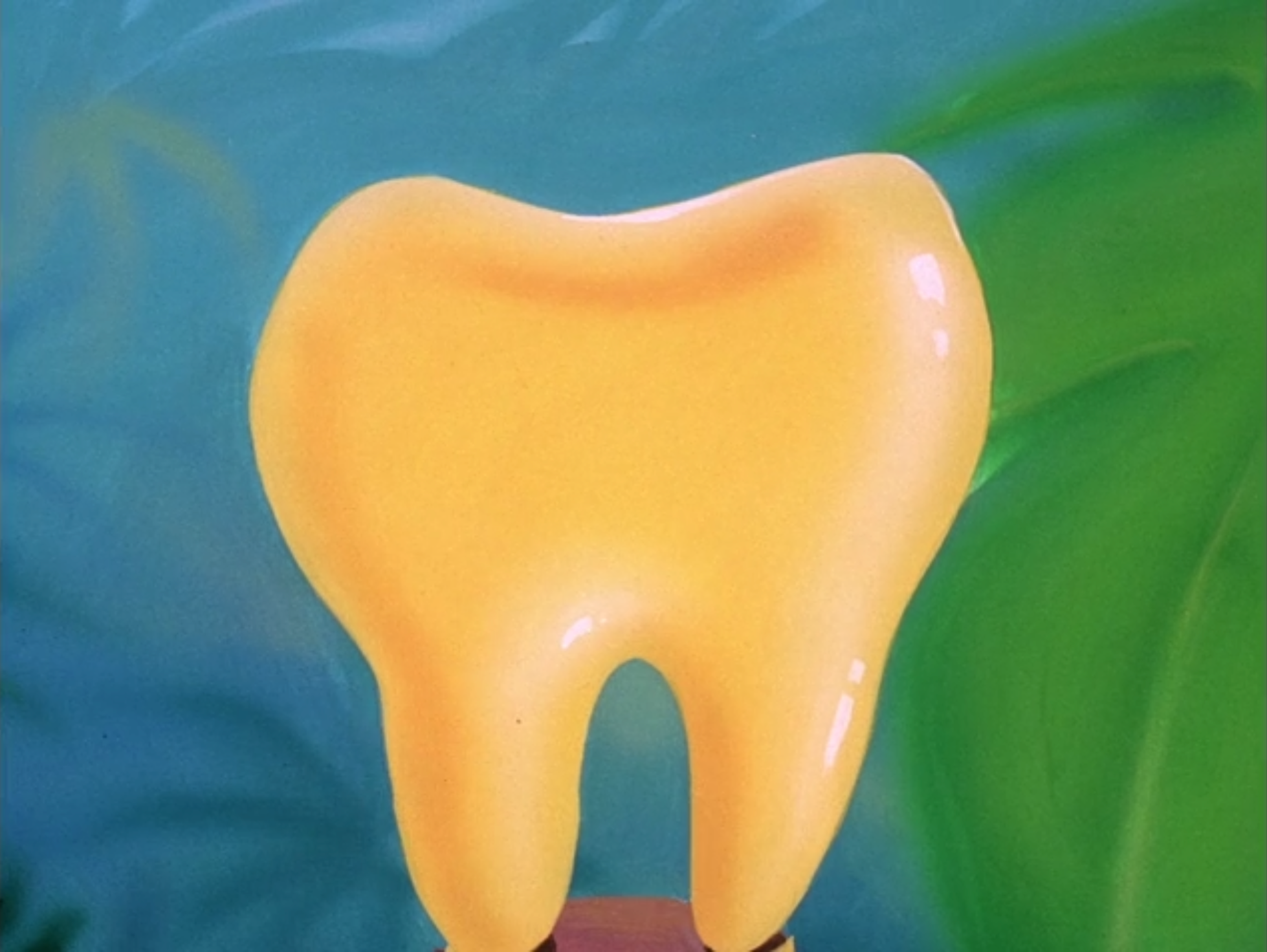 Gold tooth
