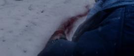Brazo izquierdo de Bucky cortado