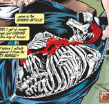 Spider-Skeleton (Earth-616)